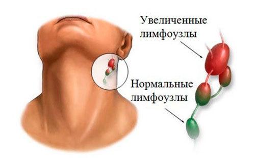 Почему увеличиваются лимфоузлы на шее, появляется слабость и головная боль