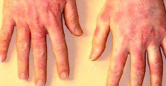 Почему появляется сыпь на руках с зудом?