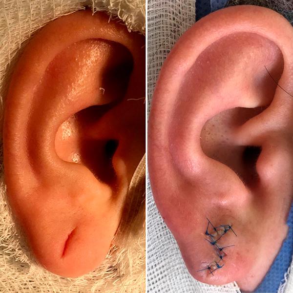 Деформация ушных раковин – врожденная и приобретенная, отопластика