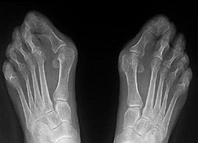 Вальгусная деформация стопы: причины развития патологии, возможные последствия и лечение