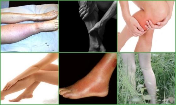 230378dcd5a10337ded0d2f5cd09ed25 - Maladie post-thrombophlébite (syndrome PTFB) - symptômes, diagnostic et traitement
