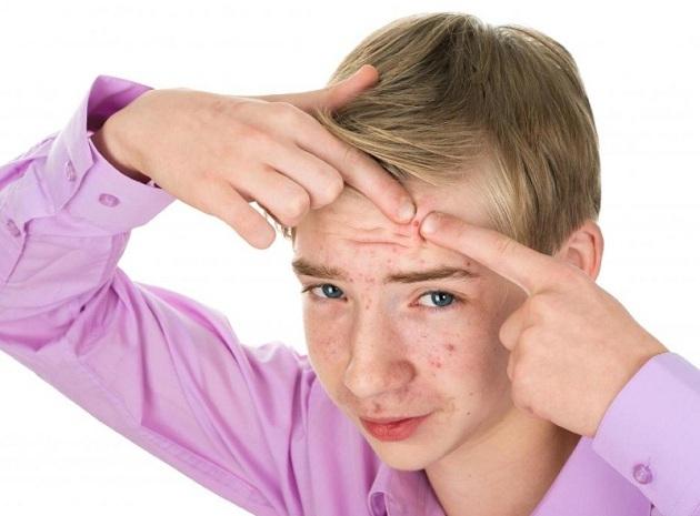 Акне у подростков и взрослых: как правильно лечить акне, лечение прыщей у подростков и взрослых
