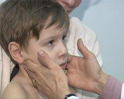Лейкопения: причины, симптомы и лечение у детей и взрослых