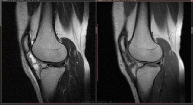 Гемартроз: что это такое, симптомы гемартроза коленного сустава, лечение