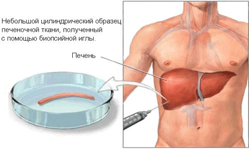 Анализы для диагностики гепатита, как обследоваться на гепатит