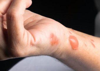 Как лечить ожоги и ускорить их заживление