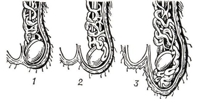 Варикоцеле – симптомы, причины развития, степени варикоцеле и методы лечения.