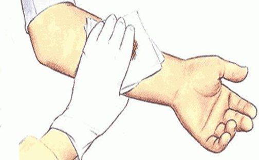 Как обработать рану в домашних условиях: основные правила обработки чистых и гнойных ран