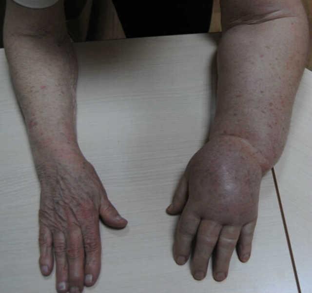 Постмастэктомический синдром: что это, причины, симптомы, лечение, профилактика