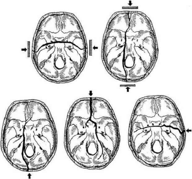 Перелом основания черепа – симптомы, первая помощь, методы лечения, выживаемость, прогноз