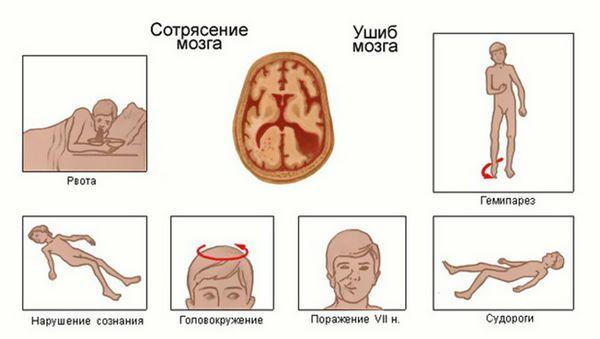 Черепно-мозговая травма: симптомы, классификация, первая помощь, последствия