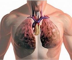 Фиброз легких сколько живут