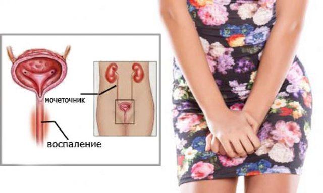 Уретрит у женщин: симптомы, лечение, препараты при уретрите у женщин