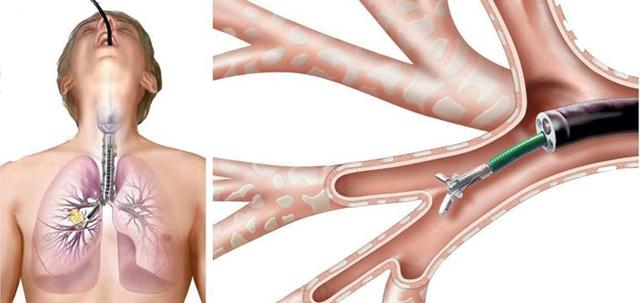 Туберкулез лимфоузлов: симптомы и первые признаки, лечение туберкулеза лимфатических узлов