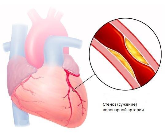 Амилоидоз поджелудочной железы: причины, симптомы, лечение, риски