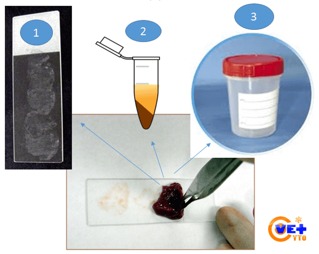 Цитологические исследования мазков: прядок забора материал и расшифровка результатов цитологических исследований
