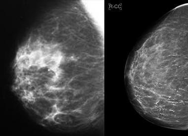 Анализ на онкомаркер nse — что показывает у мужчин и женщин, норма и расшифровка