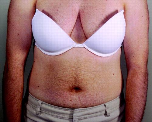 Гирсутизм у женщин: лечение, причины, гормоны, фотоэпиляция ipl при гирсутизме
