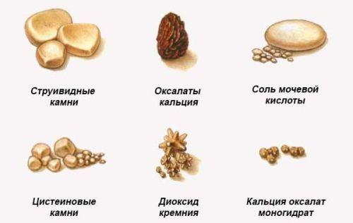 Камни мочеточника: симптомы, диагностика, лечение у женщин и мужчин
