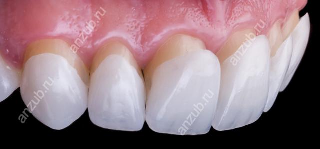 Люминиры на зубы: что это такое, отличие люминиров и виниров