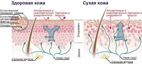 Авитаминоз: симптомы на коже, полезные витамины для кожи, витамины при сухой коже