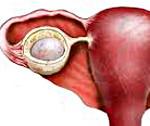 Киста яичника: все, что нужно знать о кисте яичника, первые признаки, способы диагностики и лечения.
