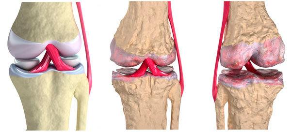Ноет колено в состоянии покоя и при сгибании щелкает: причины и лечение