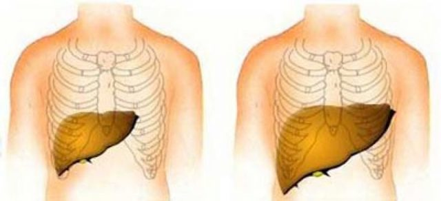 Гепатомегалия: что это такое, каковы причины, симптомы и тактика лечения