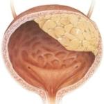 Лечение рака легких и правила питания при раке легких, методы профилактики рака легких