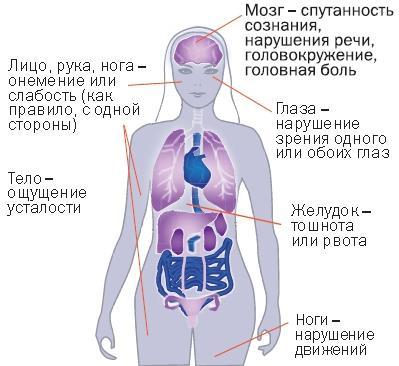 Пороки сердца – что это такое, классификация, причины возникновения, механизм нарушения кровообращения.