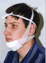 Перелом челюсти: симптомы, сколько заживает, последствия для здоровья