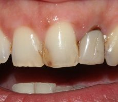 Потемнели зубы у ребенка: причины, что делать, если потемнели зубы после антибиотиков