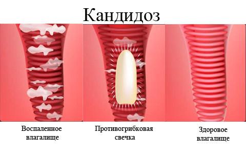 Как вылечить молочницу и эрозию шейки матки?