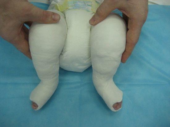 Косолапость у детей: приобретенная и врожденная косолапость, лечение косолапости, гипсование при косолапости