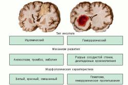 Инсульт: симптомы и признаки, причины развития, виды, как вести себя после инсульта