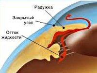 Глаукома: симптомы, причины, диагностика, профилактика и лечение глаукомы, лазерное лечение глаукомы, виды операций при глаукоме.