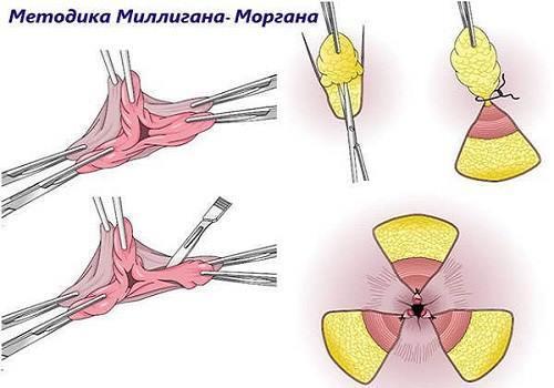 Удаление наружного геморроя – виды операций при наружном геморрое, лечение геморроя лазером