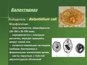 Балантидиаз – симптомы и лечение, как заражается человек, постановка диагноза, лечение балантидиаза, профилактика.