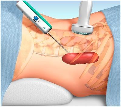 Нефрит: симптомы, лечение острого, хронического и интерстициального нефрита