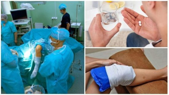 Как долго заживает сустав: последствия артроскопии и прогноз после операции