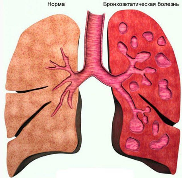 Бронхоэктазии легких: симптомы, диагностика, лечение