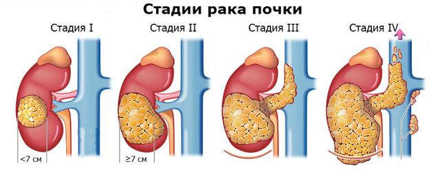 Зернисто-клеточная карцинома почки: что это такое, сколько проживет человек, лечение