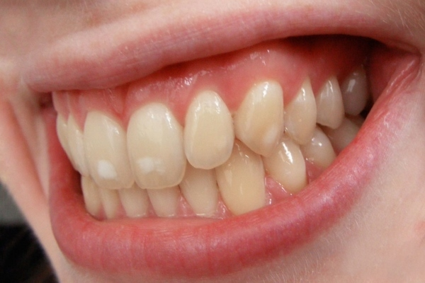Пятна на зубах - белые, желтые, коричневые, черные: причины и лечение