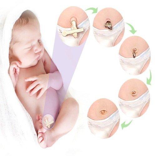 Мокнущий пупок у новорожденных — симптомы и лечение омфалита у новорожденных