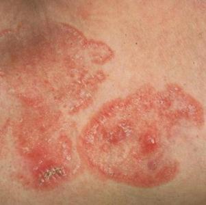 Препараты от дерматомикоза: средства для лечения дерматомикоза в домашних условиях
