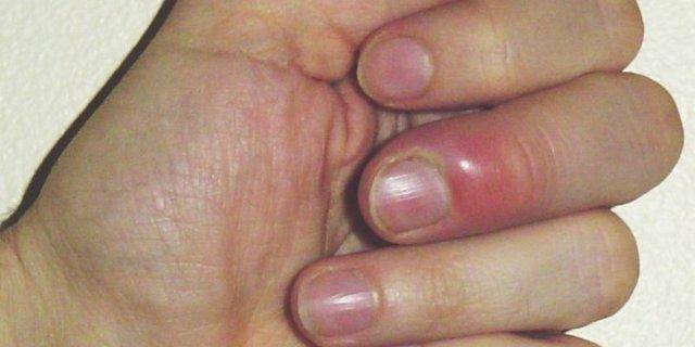 Заусенцы на пальцах: причины, что делать, как избавиться от заусенцев