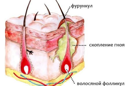 Сыпь на половом члене, белая, красная сыпь, прыщи, бородавки: причины и лечение