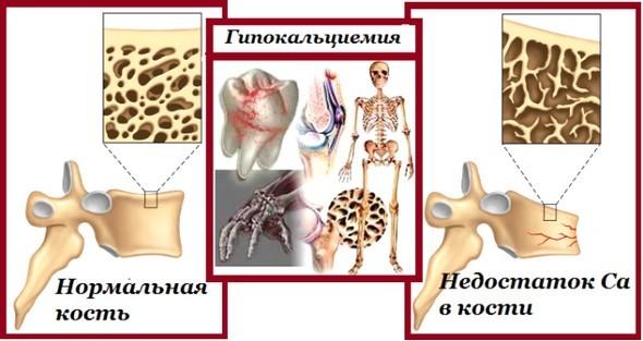 Гипокальциемия: симптомы, причины гипокальциемии у детей и взрослых, лечение гипокальциемии