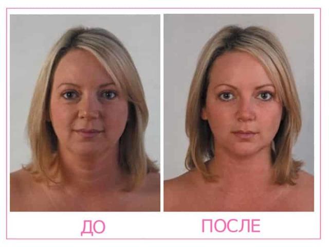 lpg-массаж для лица и тела: противопоказания, фото до и после lpg-массажа