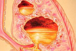 Гангрена легкого: симптомы, диагностика, осложнения, лечение абсцесса и гангрены